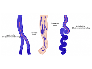 Vascular Ruptures Explaination