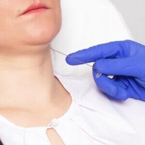 Behandling af dobbelthage (2)