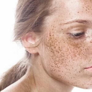 pigmentation spots