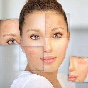 skal du passe på din hud